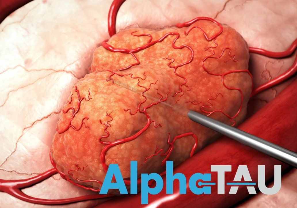 Israeli MedTech startup, Alpha TAU, plans to kill tumors from within