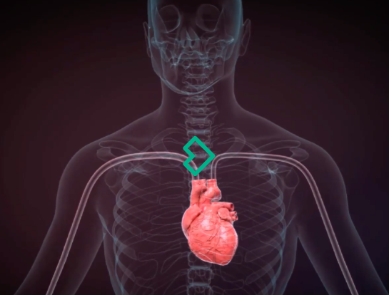 Israeli startup MedHub scores CE Mark equipping cardiologists with AI-powered diagnostics