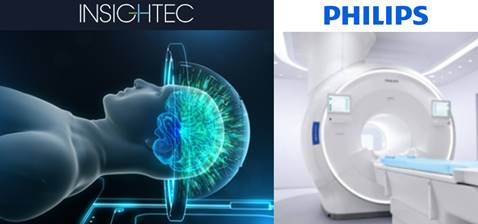 Philips & InSightec join forces to usher in the future of patient care